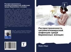 Portada del libro de Распространенность цитомегаловирусной инфекции среди беременных женщин