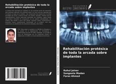 Couverture de Rehabilitación protésica de toda la arcada sobre implantes