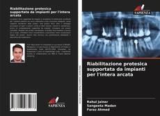 Buchcover von Riabilitazione protesica supportata da impianti per l'intera arcata