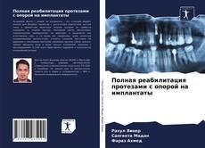Buchcover von Полная реабилитация протезами с опорой на имплантаты