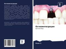 Bookcover of Остеоинтеграция