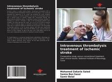 Buchcover von Intravenous thrombolysis treatment of ischemic stroke