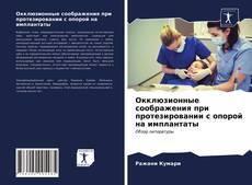 Окклюзионные соображения при протезировании с опорой на имплантаты kitap kapağı