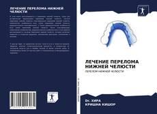 Capa do livro de ЛЕЧЕНИЕ ПЕРЕЛОМА НИЖНЕЙ ЧЕЛЮСТИ