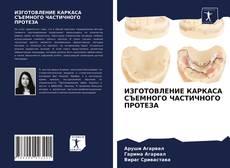 Bookcover of ИЗГОТОВЛЕНИЕ КАРКАСА СЪЕМНОГО ЧАСТИЧНОГО ПРОТЕЗА