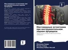 Bookcover of Мостовидные остеотомии при инструментальном заднем артродезе