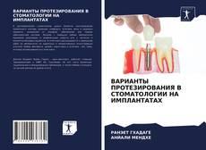 Capa do livro de ВАРИАНТЫ ПРОТЕЗИРОВАНИЯ В СТОМАТОЛОГИИ НА ИМПЛАНТАТАХ