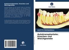 Copertina di Autotransplantate: Knochen und Weichgewebe