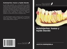 Bookcover of Autoinjertos: hueso y tejido blando
