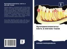 Аутотрансплантаты: кость и мягкие ткани的封面