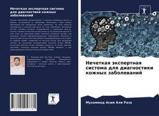 Bookcover of Нечеткая экспертная система для диагностики кожных заболеваний