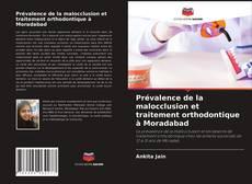 Bookcover of Prévalence de la malocclusion et traitement orthodontique à Moradabad