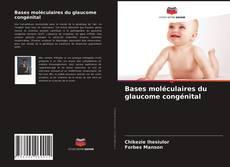 Buchcover von Bases moléculaires du glaucome congénital