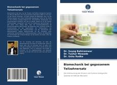 Bookcover of Biomechanik bei gegossenem Teilzahnersatz