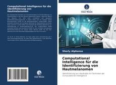 Bookcover of Computational Intelligence für die Identifizierung von Hautmelanomen