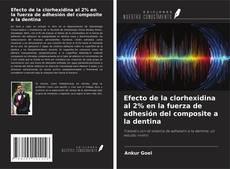 Bookcover of Efecto de la clorhexidina al 2% en la fuerza de adhesión del composite a la dentina