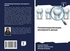 Bookcover of Гипоминерализация молярного резца
