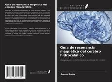 Обложка Guía de resonancia magnética del cerebro hidrocefálico