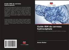 Borítókép a  Guide IRM du cerveau hydrocéphale - hoz