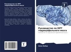 Buchcover von Руководство по МРТ гидроцефального мозга