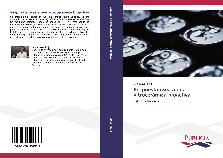 Respuesta Sea A Una Vitrocermica Bioactiva Librera Agrcola Jerez