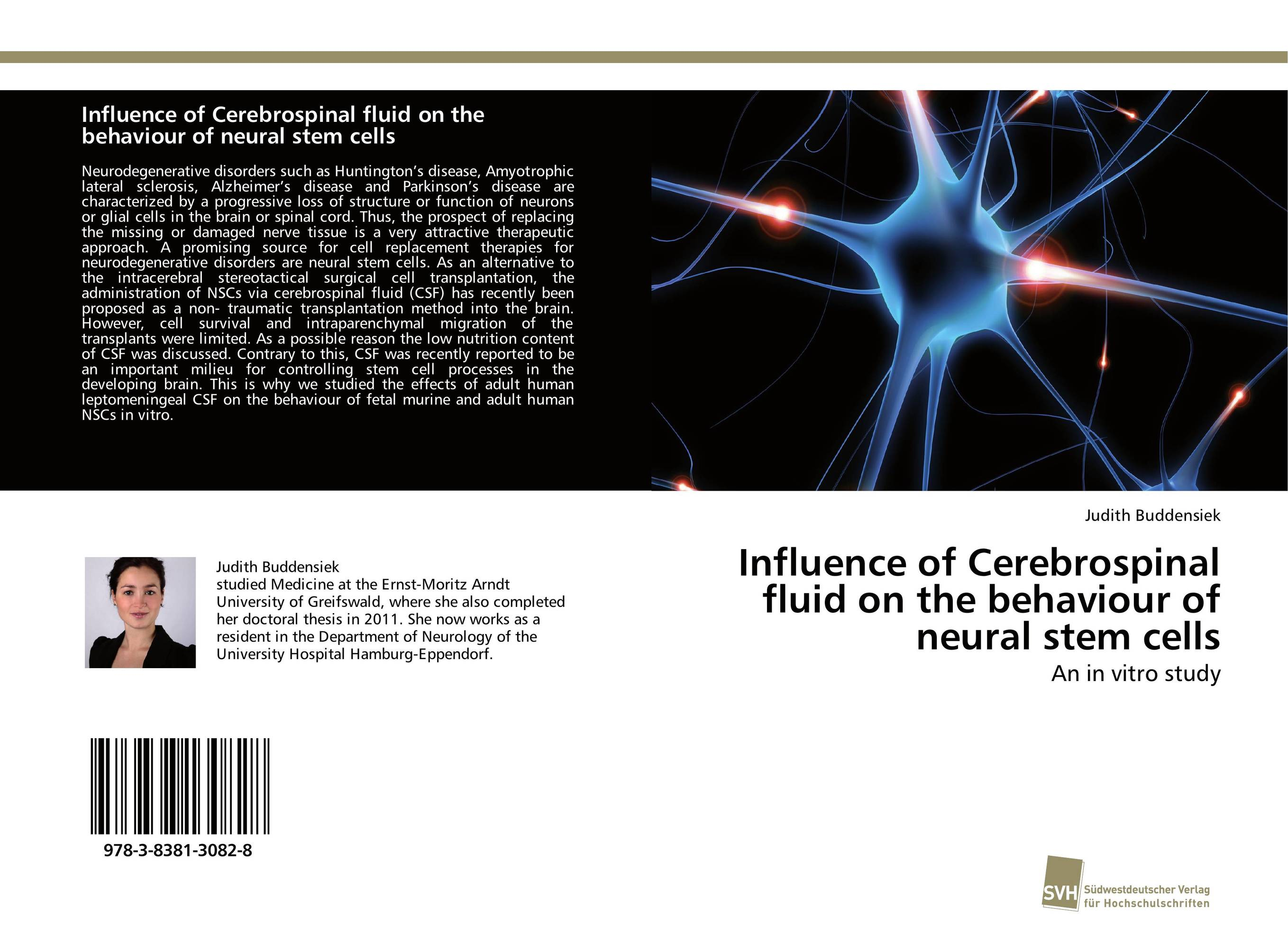 9783838130828 Influence of Cerebrospinal fluid on the behaviour al stem cells
